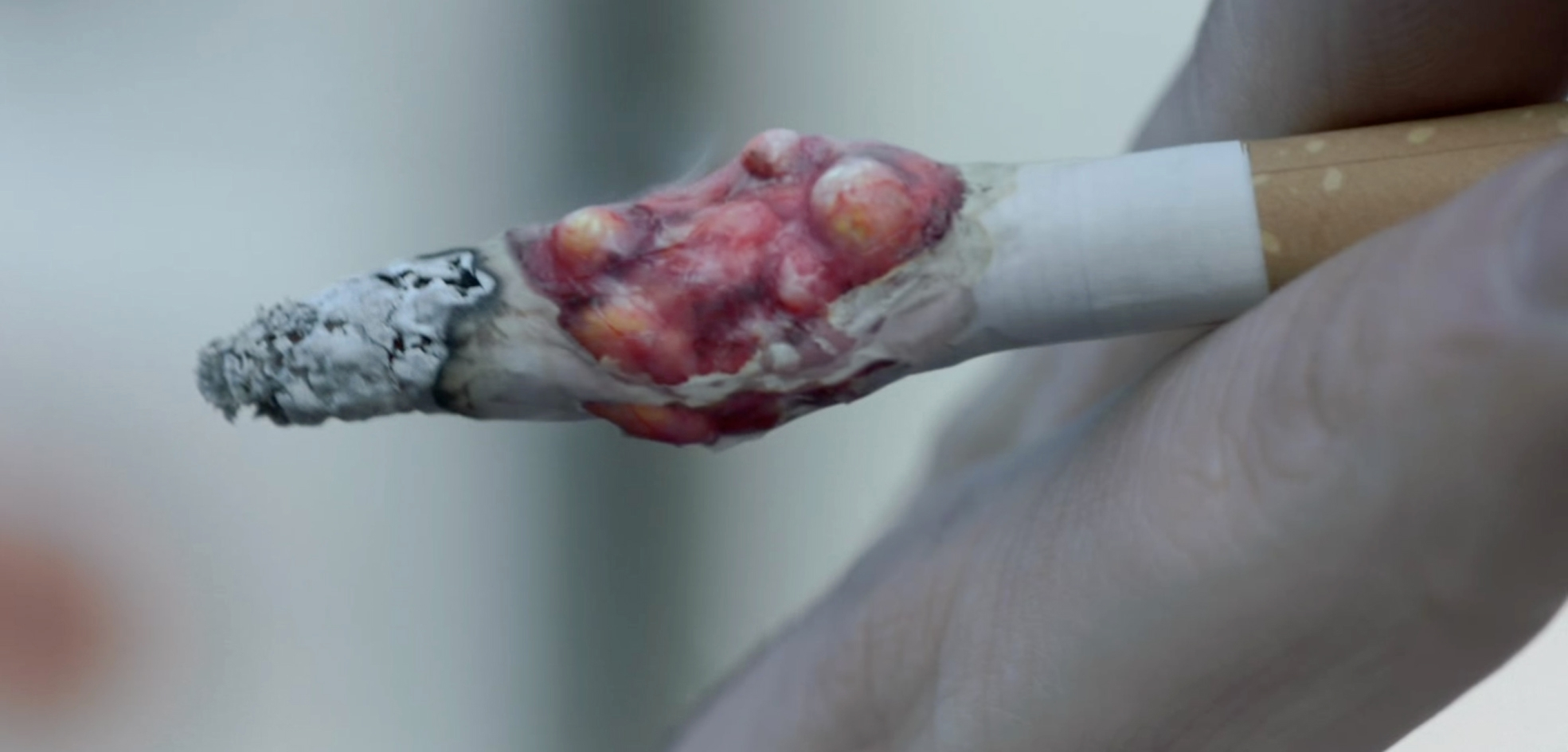 The hard hitting anti-smoking advert showing a tumour in a cigarette.