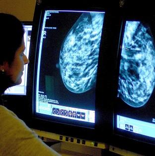 There has been a fall in the percentage of women having breast cancer screening.