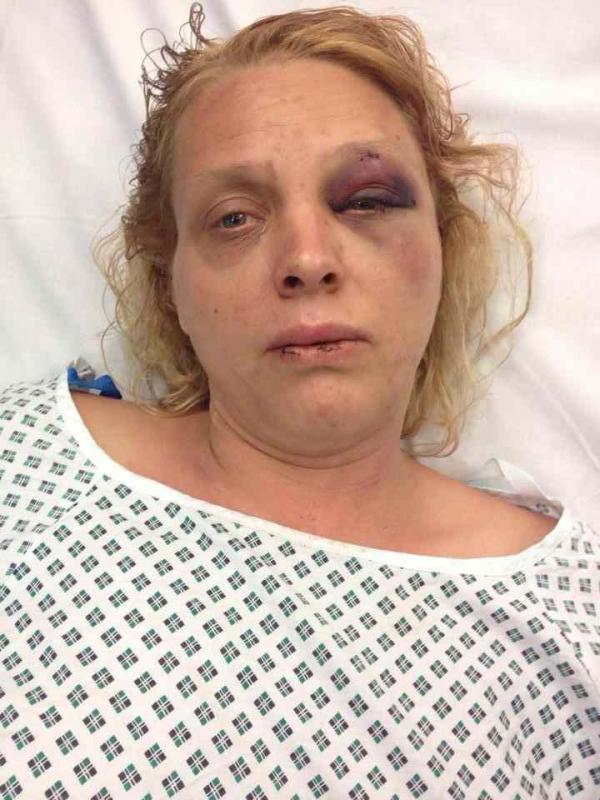 Battered wife from near Taunton warns victims to go to the police